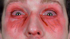 Pepper spray in the eyes